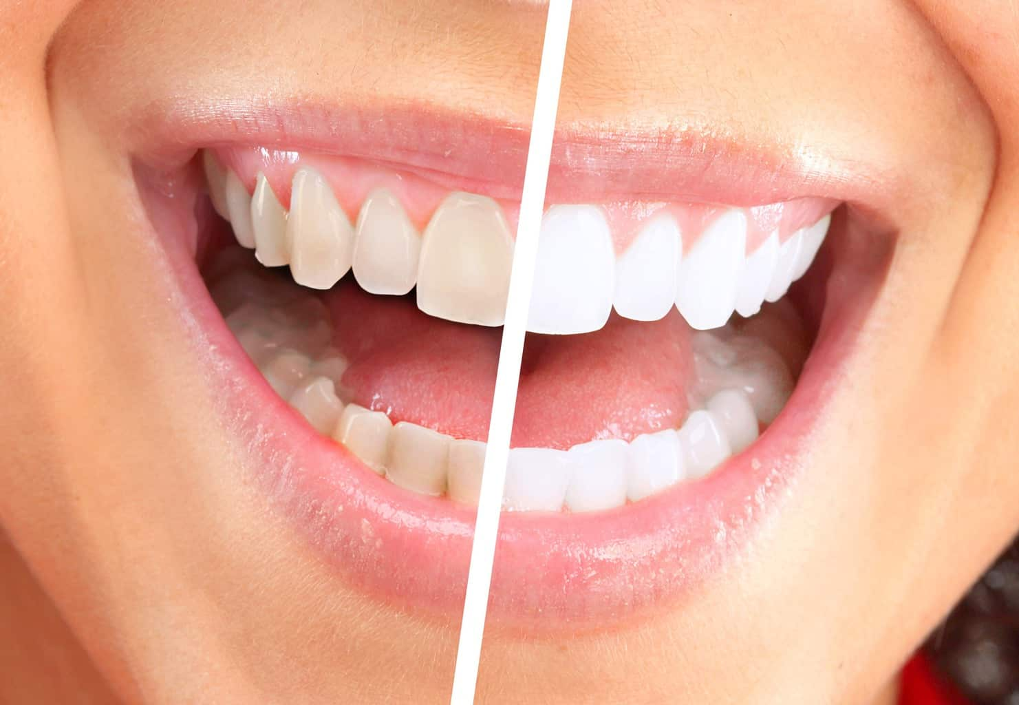 Boon Dental Teeth Whitening
