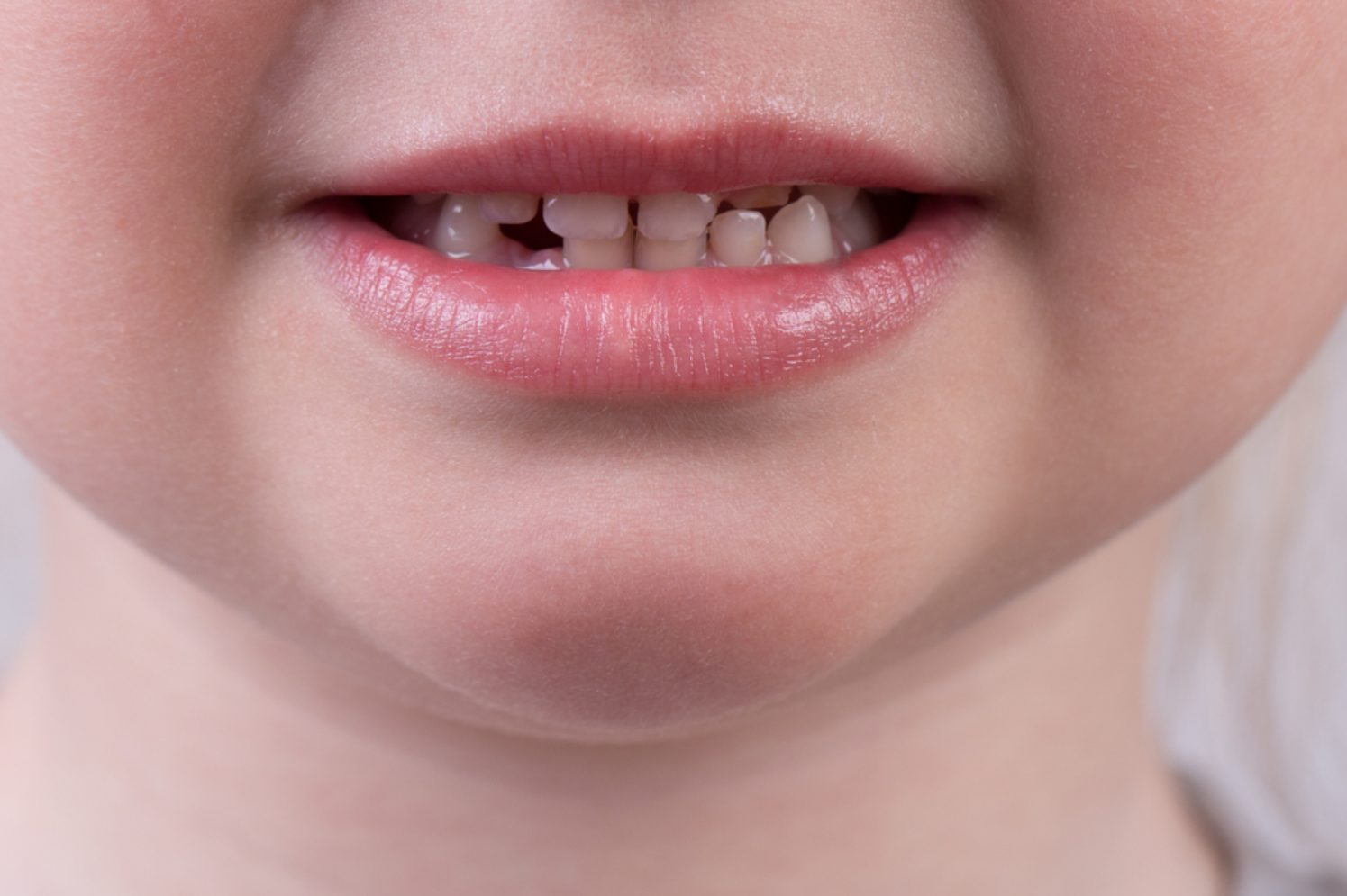 an image of a a kid's chipped teeth